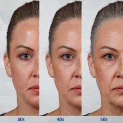 I Don't want fillers! I'll look bloated and fake!